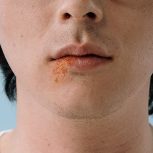 Destroy Herpes Within Days